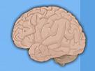 Beyin Ameliyatı